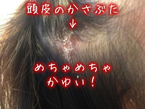 頭皮 湿疹 かゆい